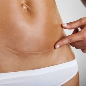 """Vos cellules construisent des """"ponts"""" pour régénérer la peau"""