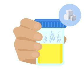 Votre urine a une odeur sucrée