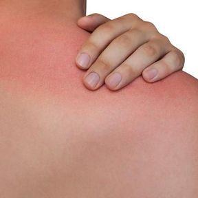 Des plaques rouges semblables à des coups de soleil, une fièvre élevée et des vomissements