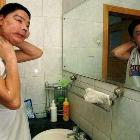 Li Guoxing après sa greffe