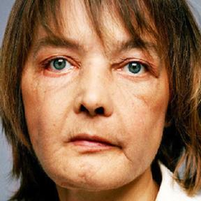 Isabelle Dinoire après sa greffe