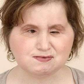 Katie Stubblefield après sa greffe