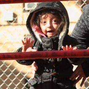 L'impression 3D redonne le sourire à une enfant