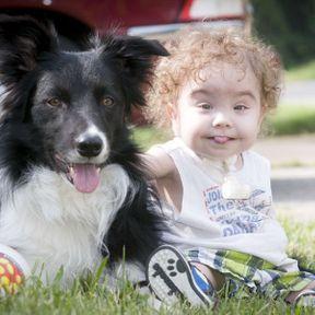 Une prothèse de trachée imprimée sauve la vie d'un bébé