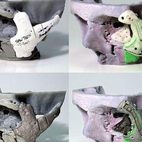 Reconstruction faciale : les prouesses de l'impression 3D