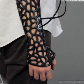 Un plâtre intelligent imprimé en 3D