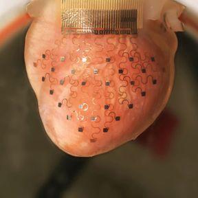 Une membrane capable de prédire les infarctus