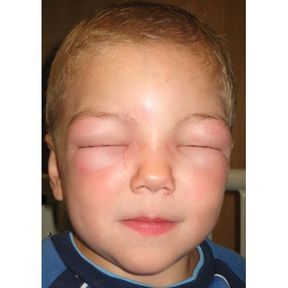 Le choc anaphylactique ou anaphylaxie