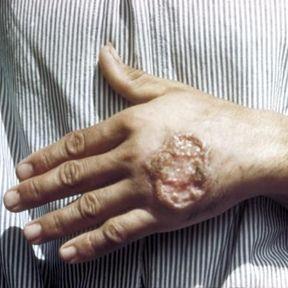 Les leishmanies, responsables de la leishmaniose