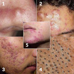 Comment reconnaître de l'acné ?