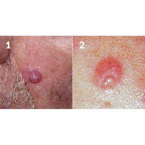 Comment reconnaître un carcinome ?