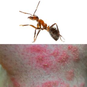 Les piqûres de fourmis