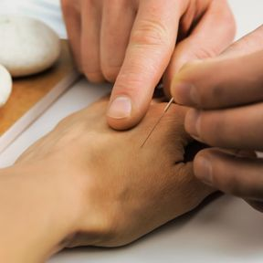 Un point d'acupuncture sur la main