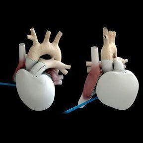 Deuxième implantation du cœur artificiel Carmat