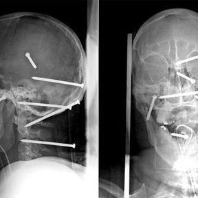 Six clous plantés dans le crâne