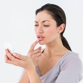 Les gels et patchs contre le bouton de fièvre