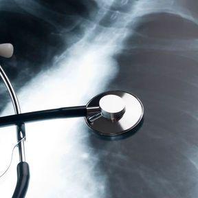 Tumeurs bénignes du poumon