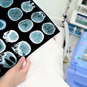 Tumeurs bénignes du système nerveux
