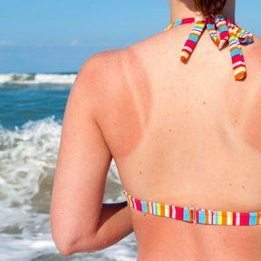 Homéopathie en cas de brûlures légères et de coup de soleil