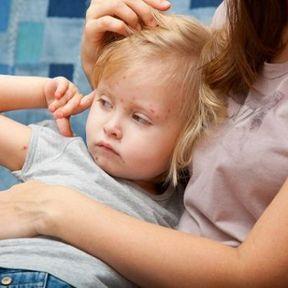 La varicelle, une maladie pas si bénigne