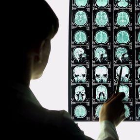 Différents types d'accident vasculaire cérébral