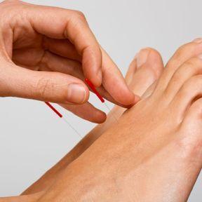 L'acupuncture pour tonifier son énergie sexuelle