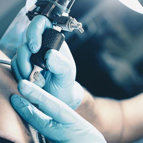 Tatouages : après l'encre, les aiguilles suspectées de susciter des allergies