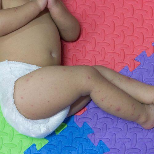 Dans le Nord, un bébé décède des complications de la varicelle