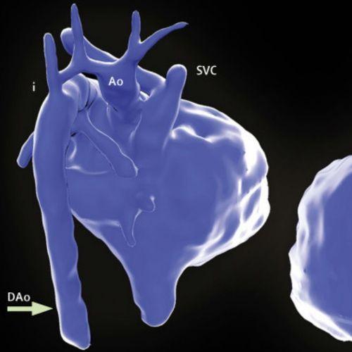 Une vidéo 3D du cœur d'un fœtus in utero permet de détecter des malformations cardio-vasculaires