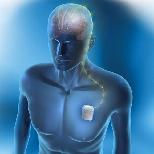 Parkinson : la stimulation cérébrale profonde améliore de 70% les symptômes