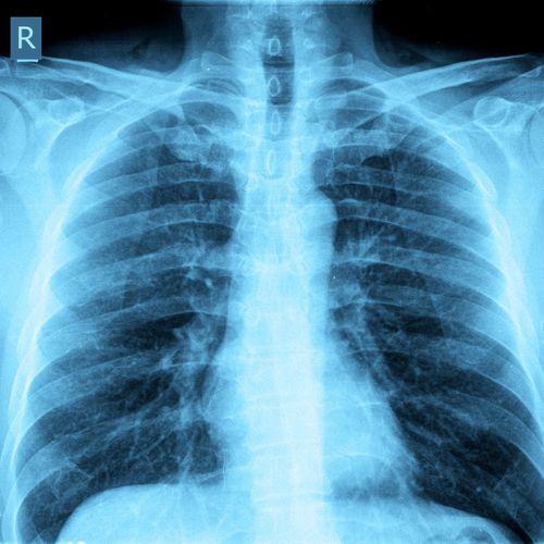 Tuberculose multirésistante : un nouveau traitement commercialisé
