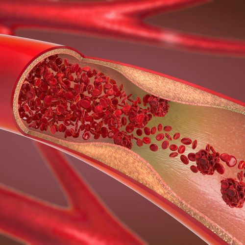 Les artères vieillissent plus vite chez les femmes que chez les hommes