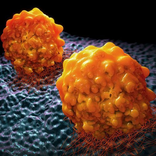 Cancer : les métastases seraient présentes des années avant que la tumeur ne soit détectable