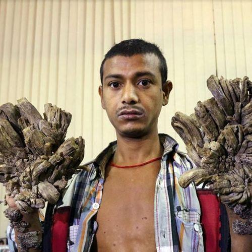 Souffrant de douleurs insoutenables, l'homme-arbre demande à être amputé des deux mains