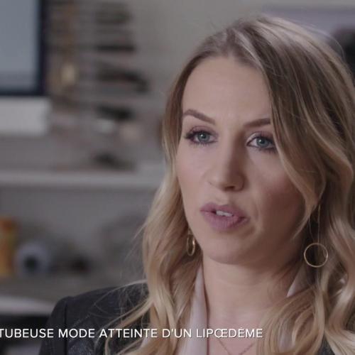 """Lipœdème : la youtubeuse Emmy évoque sa """"maladie des grosses jambes"""""""
