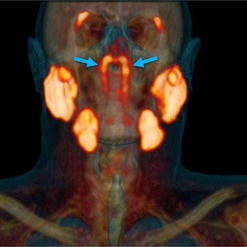 De nouveaux organes humains découverts dans la tête