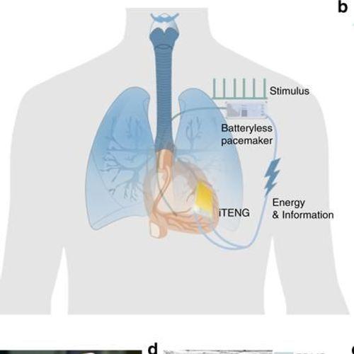 Bientôt, un pacemaker alimenté par les battements du cœur ?