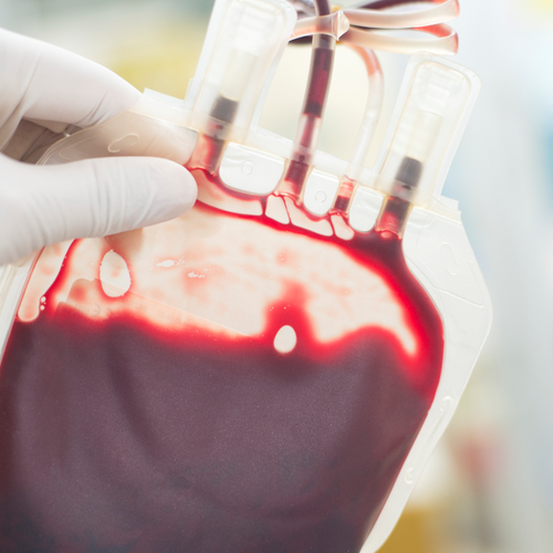 Transfusion de plasma : Les États-Unis disent stop aux cures de jouvence Dracula